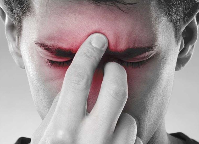 Sinusite, i rimedi naturali