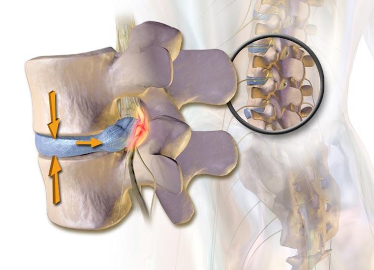 Ernia del disco, cause e sintomi