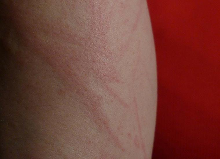 Come trattare il bambino a dermatite atopic