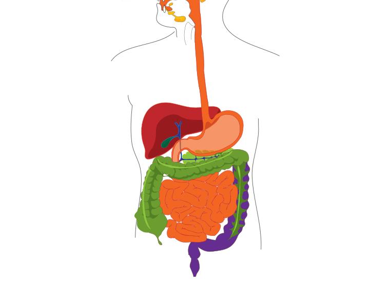 Polipi intestinali: sintomi e cure