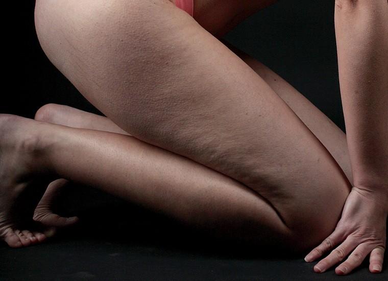 Cellulite edematosa: come si presenta e come combatterla