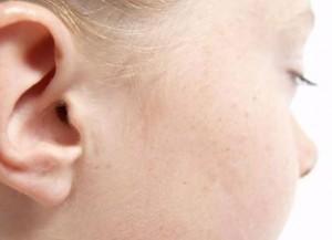 orecchio cerume