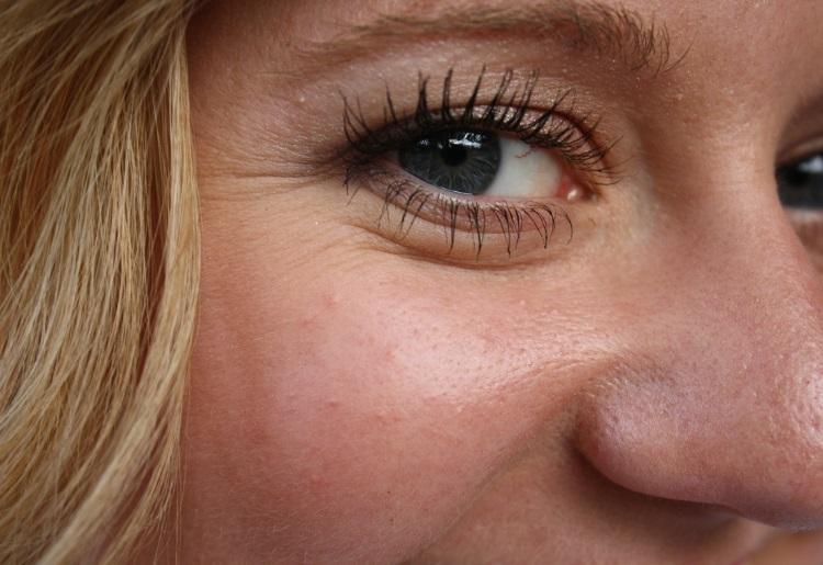 Acido ialuronico e cosmetici: le creme antirughe