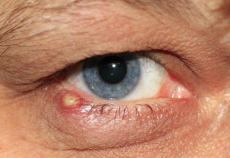 Contorno occhi: arrossamento, infiammazione, e le varie tipologie di rimedi e cure