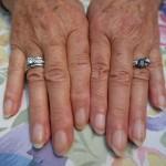 psoriasi unghie