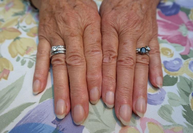 Psoriasi alle unghie : come si presenta e come curarla