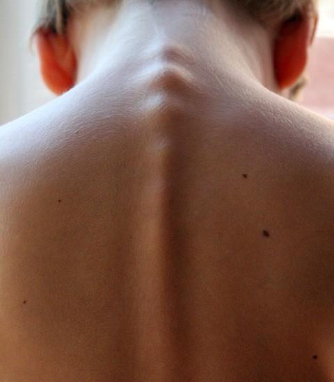 Il nevo verrucoso: una patologia della pelle molto sottovalutata