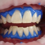 laser-teeth-whitening-716468_960_720