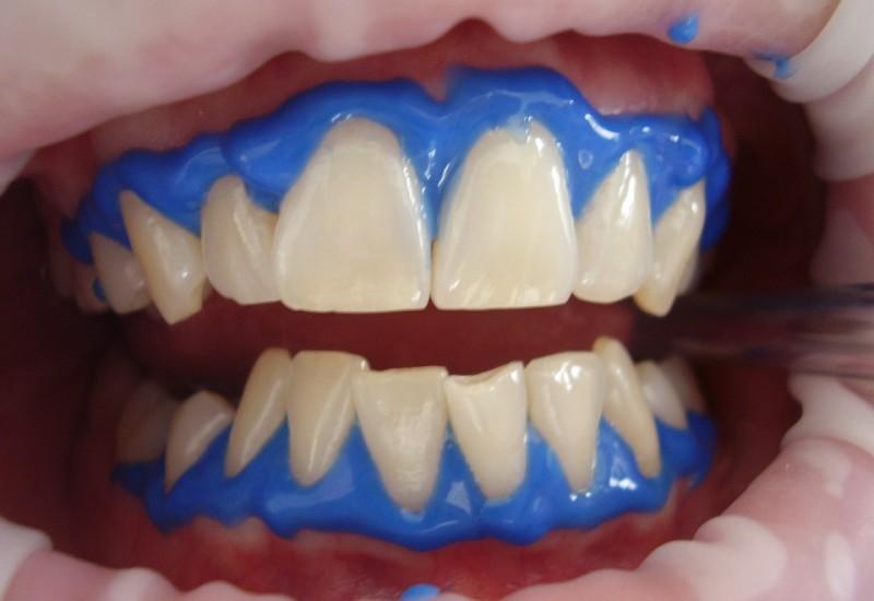 Metodi di sbiancamento dentale, differenze e controindicazioni