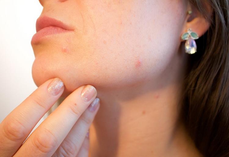 Puntini rossi sulla pelle: quali sono le cause e quali i rimedi