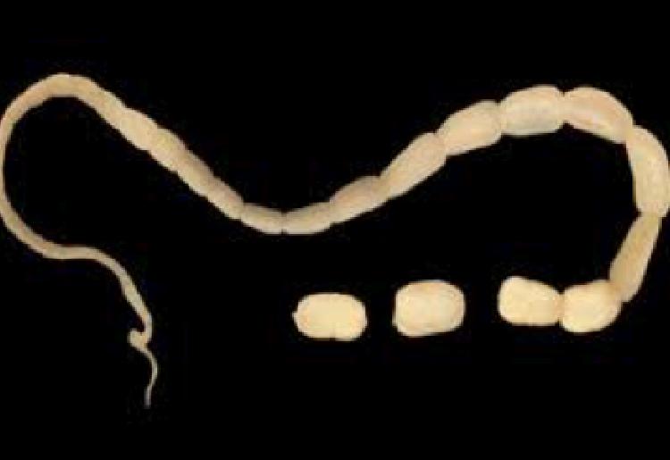 L'infestazione da verme solitario: come si contrae, come prevenirla