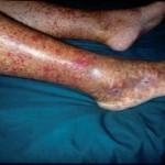 crioglobulinemia