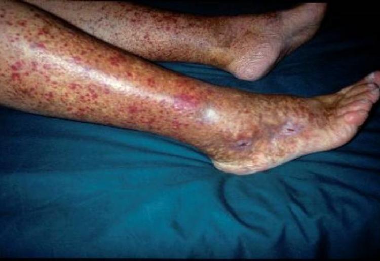 La crioglobulinemia: cause, sintomi e trattamenti