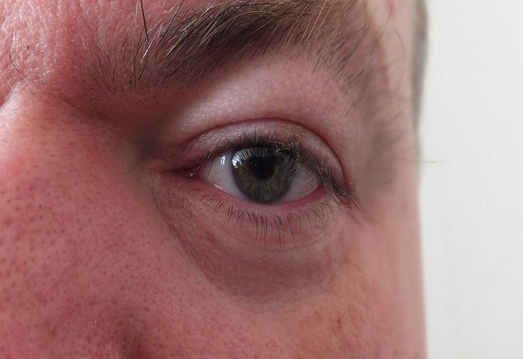 Palpebre gonfie, cause, sintomi e rimedi