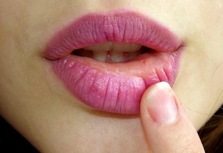 Labbro gonfio, sintomi, cause e rimedi
