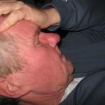 Emicrania oftalmica, sintomi, cause e rimedi