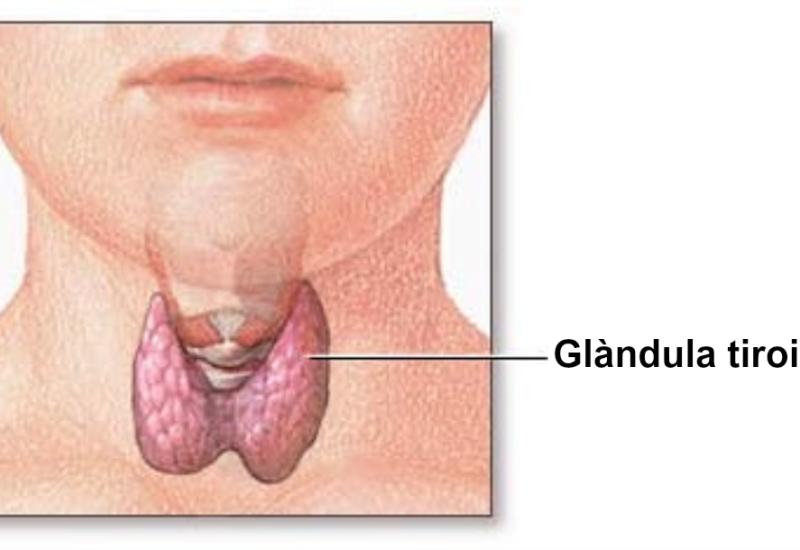 Tiroide ingrossata, le cause e la cura