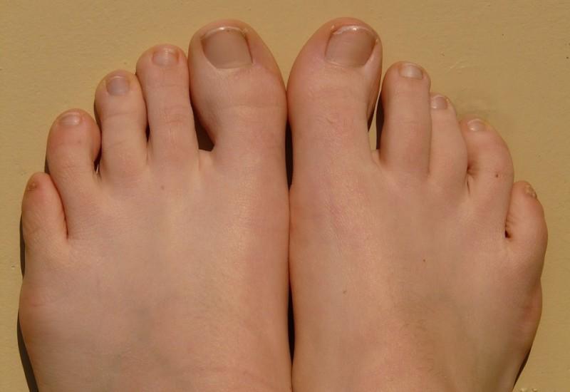 Le malattie delle unghie dei mani e dei piedi