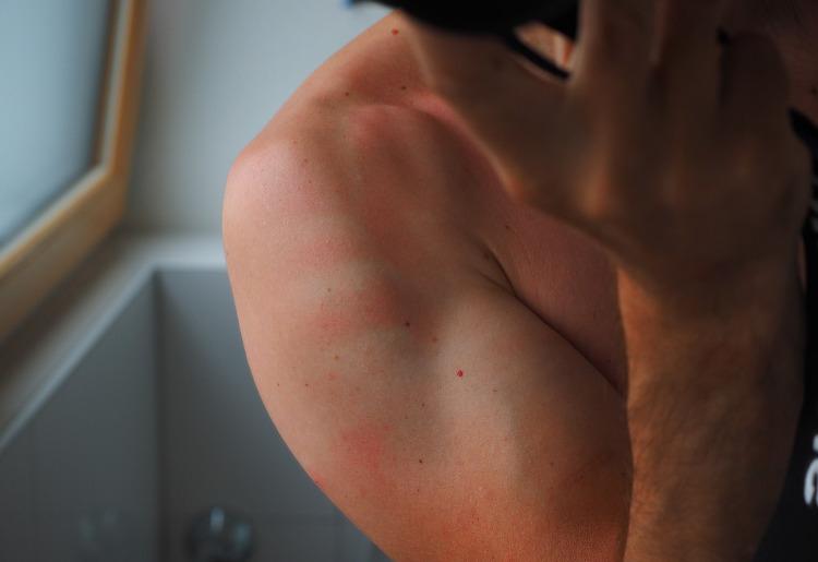 Dermatite da contatto, cause sintomi e cura