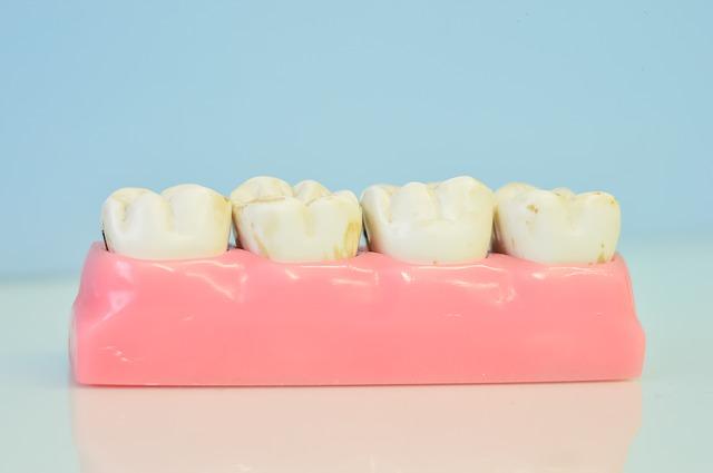 Come ottenere la perfetta pulizia della protesi dentale
