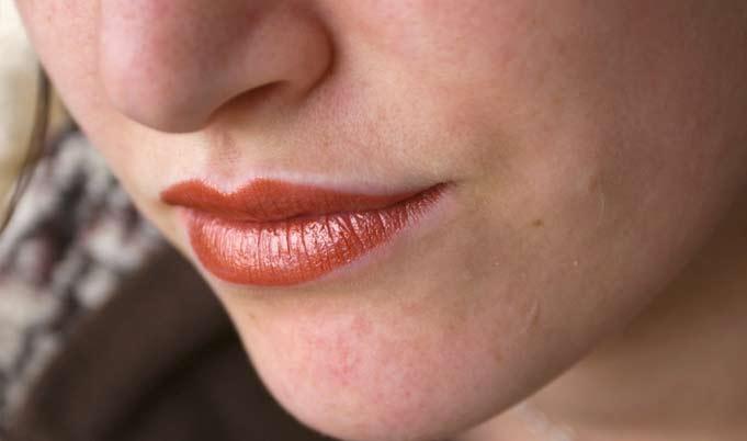 Macchioline sul viso, come si causano e come si contrastano