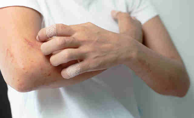 Orticaria, sintomi, cause e cura