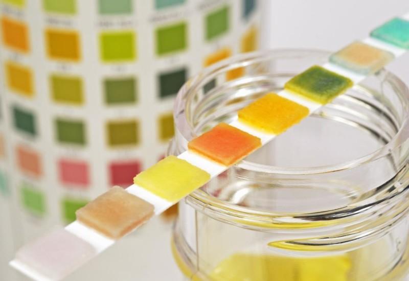 Proteine urine, alte e basse: i valori